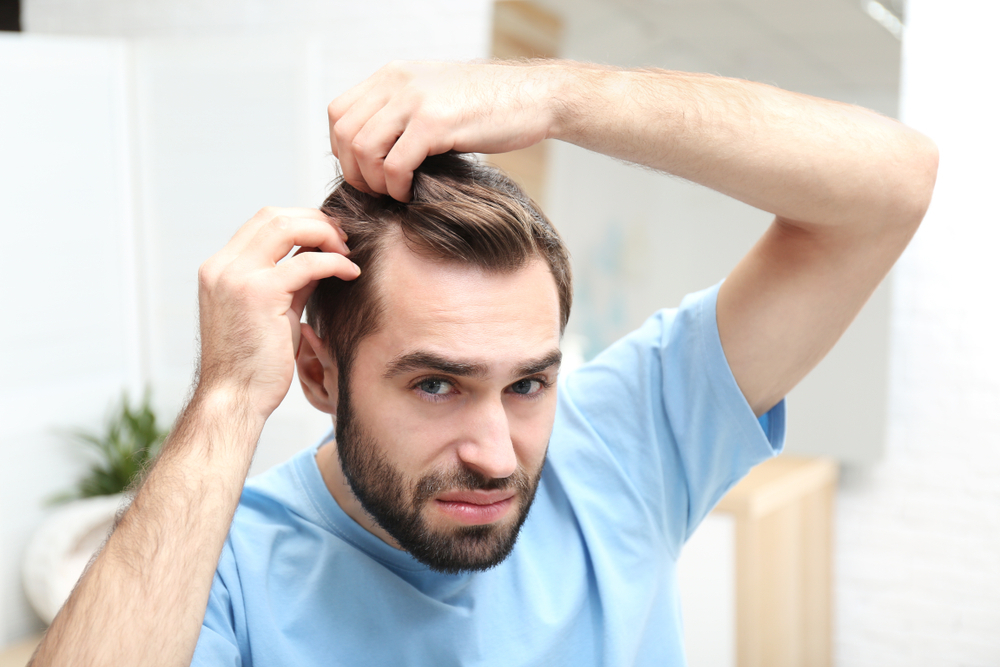 myths about male hair loss